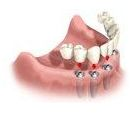Installing the Dental Implant