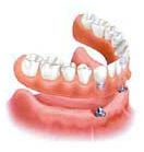 implant fixed dentures