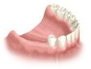 Examination and X-Rays for dental implant