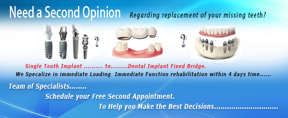 All-on-8 Dental Implant Delhi India