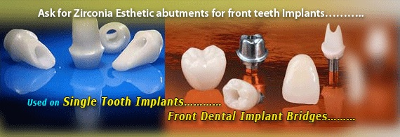 cost of dental implants delhi india