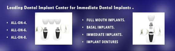 Immediate Dental Implants Delhi India