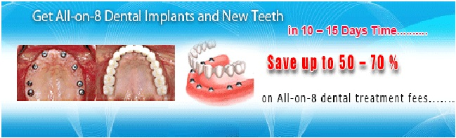 All-on-8-dental_implant